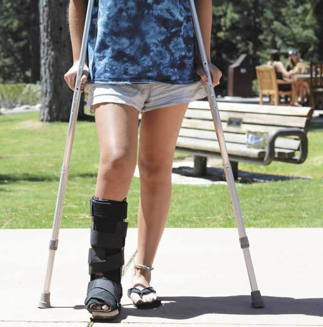 Student injury girl walking on crutches